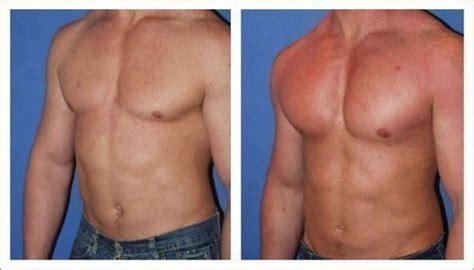 implantes de gluteos fotos silicone para homens o que voc 234 precisa saber