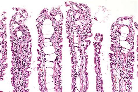 lymphangiectasia in dogs lymphangiectasis intestinal