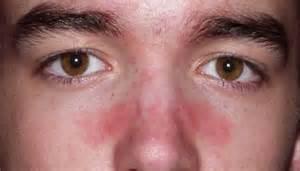 comment soigner un contour du nez irrit 233 en mode