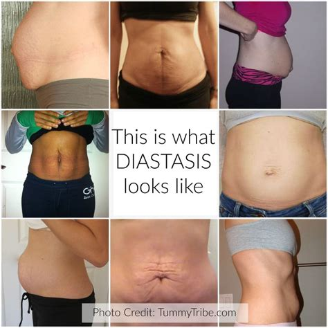 diastasis recti c section 25 best ideas about diastasis recti on pinterest