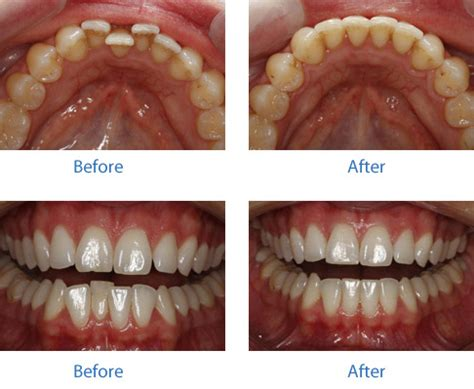 how to fix crooked teeth at home find the answer to can