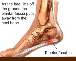 How Does Planters Fasciitis Last by Recovery Time For Heel Spur Surgery Aleasefremming S