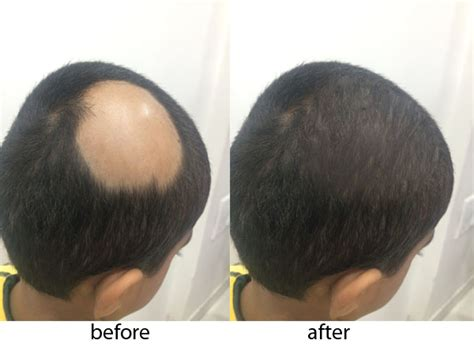what is hair baldness treatment skin and surgery
