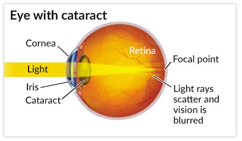 cataracts and how they can effect activities and lifestyle