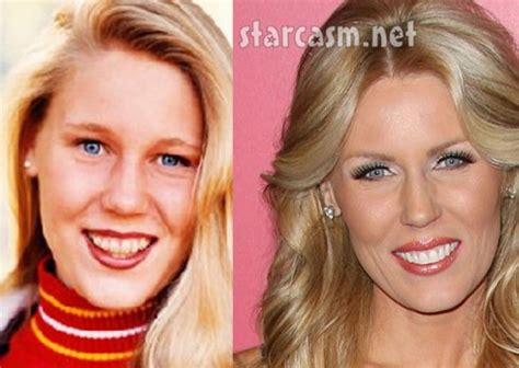 gretchen rossi before and after plastic surgery photos