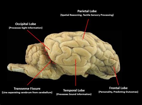 sagittal section of sheep brain the brain scientist cindy