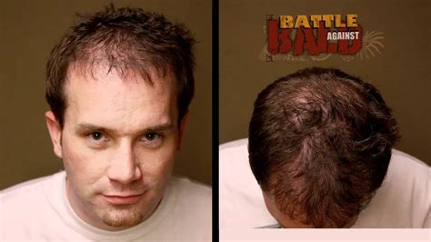 how much does bosley cost on average bosley hair transplant cost average om hair