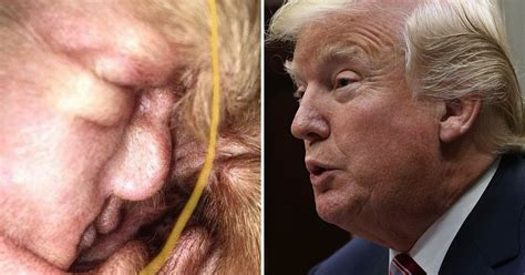 donald trump looks like cyst in tyneside dog s ear looks like us president donald