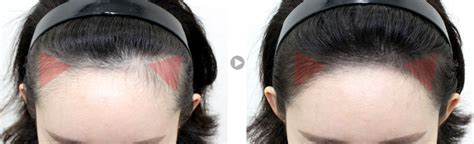 how to make a mens forehead looks smaller mojelim hair surgery korea no 1 187 hairline contour
