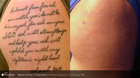 microdermabrasion tattoo removal laser removal the skin center at southgate