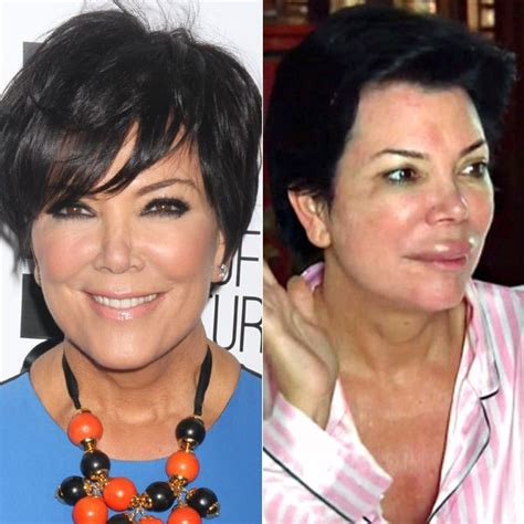 does kris jenner have a long neck for short hair kris jenner plastic surgery lips swollen from allergies