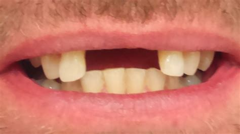 4 missing front teeth implants photo gallery