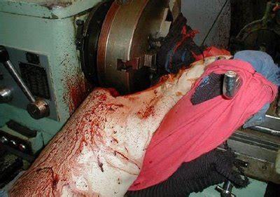 Kronologi Kecelakaan Kerja by Dim S Chayank Dhudul S Kecelakaan Maut
