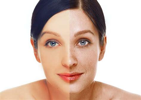 tratamientos tratamientos para las manchas remedios naturales para las manchas en la cara excelentes