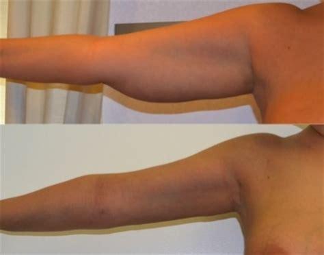liposuzione sedere liposuzione braccia chirurgia estetica addome