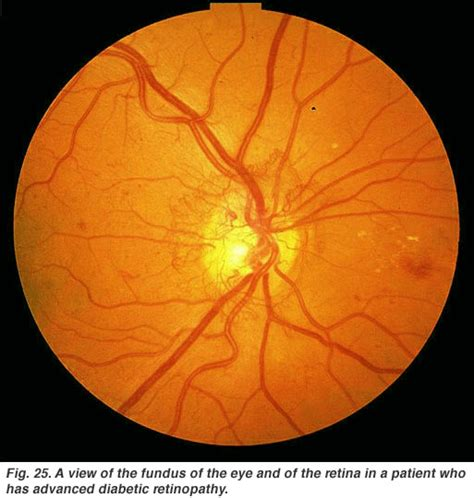 fundus exam findings simple anatomy of the retina by helga kolb webvision