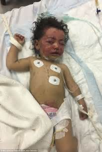 one year old bed two babies burned and injured from a yemen airstrike