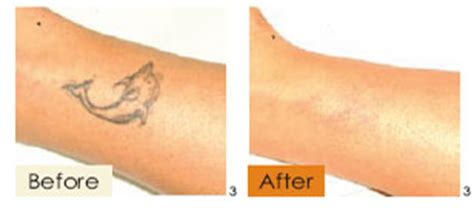 tattoo removal price range laser hair removal tokyo japan removal ipl laser
