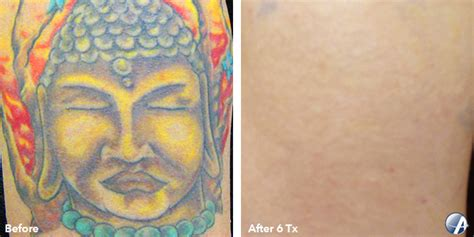 tattoo removal buffalo ny laser removal buffalo ny the neiman dermatology
