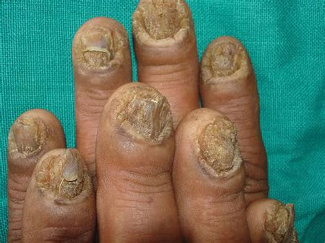 cure fingernail fungus naturally