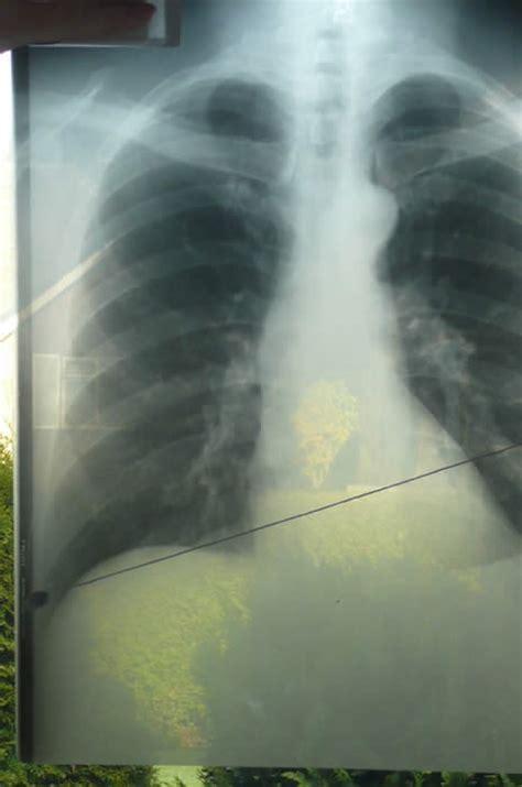 Baron Lung richthofen