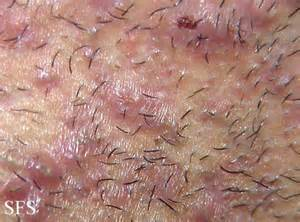 constant ingrown hairs on pubis ingrown hair prevention infection scars pictures cure