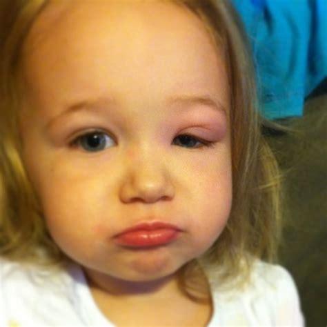 has swollen eye swollen in babies new center