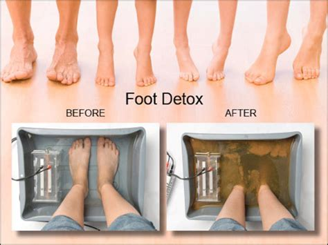 Where Can I Get A Detox Foot Bath by Essex S Deal 25 00 For An Ion Detox Foot Bath