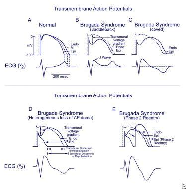 pattern theory physiology brugada syndrome practice essentials background