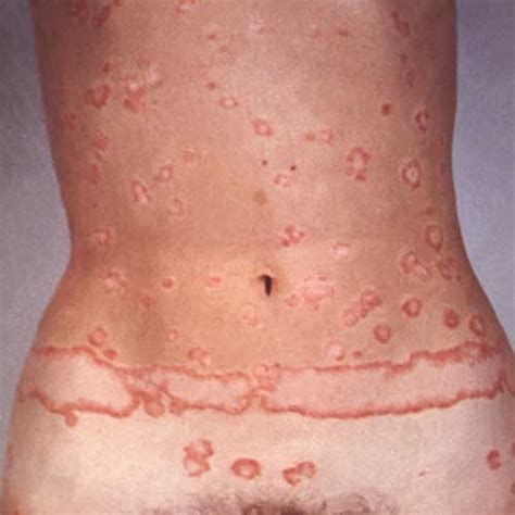 is pic psoriasis the skin what condition new psoriasis psoriasis symptoms dorothee padraig south west skin