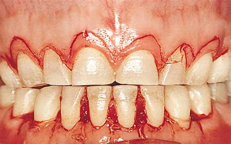 surgical esthetic correction for gingival pigmentation surgical crown lengthening procedures the next dds
