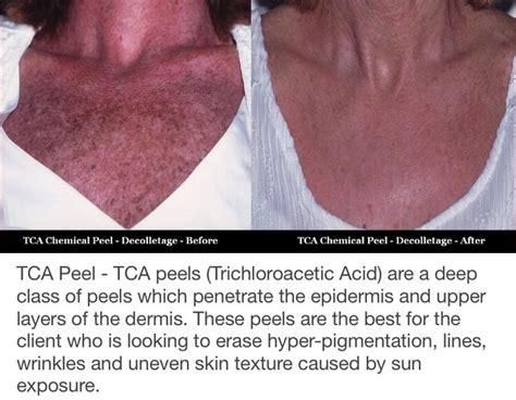 the 25 best tca peel ideas on tca chemical