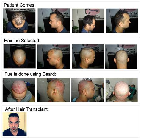 hair transplant in australia what are the factors that hair transplant in australia newinhairtransplant 100