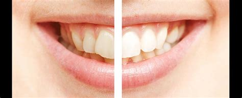 whitening gardner dental