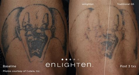 can you tattoo over laser tattoo removal laser removal before and after dallas fort