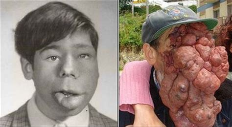 jose man with no face after surgery disfigured by facial tumors