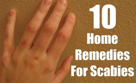 10 must follow home remedies for scabies find home