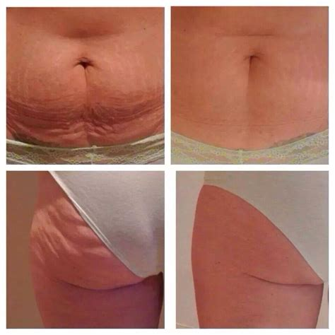 how to get rid of saggy belly after c section get rid of that saggy loose skin cellulite and so much