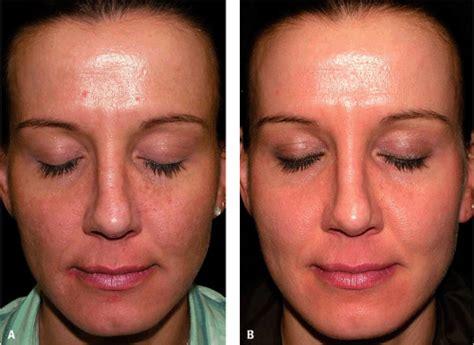 10 glycolic acid peel side effects superficial chemical peels plastic surgery key