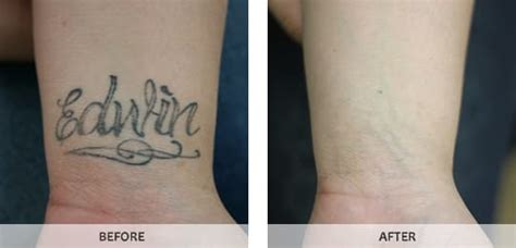 laser tattoo removal new york laser removal in bronx westchester new york ny by