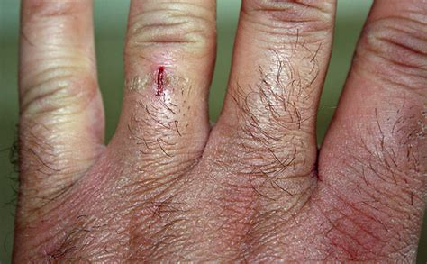 Wedding Ring Injury by Wedding Ring Injury Flickr Photo