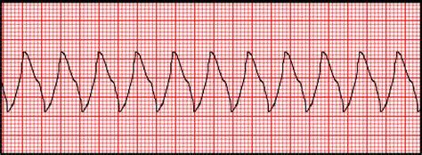 section 9 : ventricular rhythm