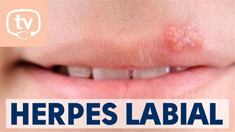 Find With Herpes El Herpes Qu 233 Es Causas Y Tratamiento