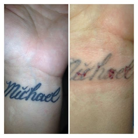 28 laser removal near me amazing progress on