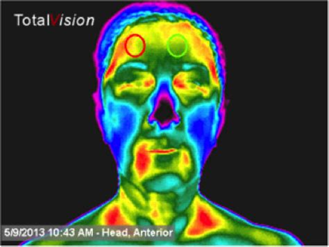 breast and full body thermography