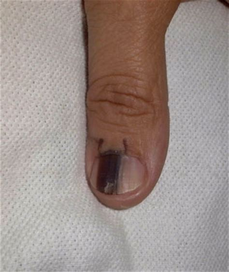 dark line on fingernail nail health fingernail problems linked to health problems
