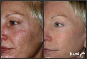 fraxel laser vorher nachher fraxel laser resurfacing about skincare