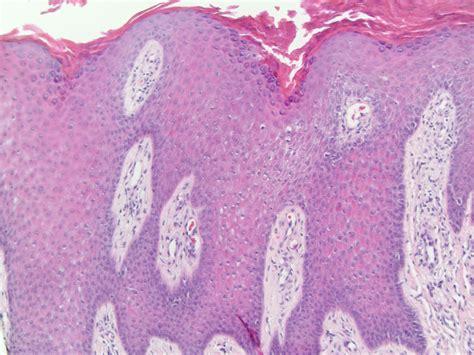 Psoriasiform Dermatitis Pictures