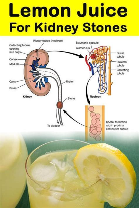 How To Detox Kidney Stones by How To Eliminate Junk Food Cravings For Health