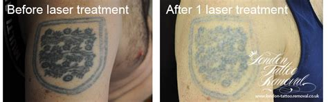 tattoo removal cream london london tattoo removal